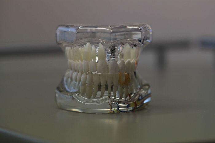 Jak dbać o protezy zębowe? Jak czyścić sztuczną szczękę?